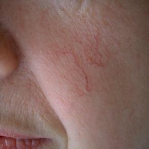 alcohol nose veins